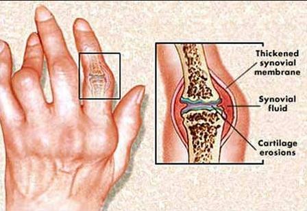 a rheumatoid arthritis 2 ujjának kalapácsváltása
